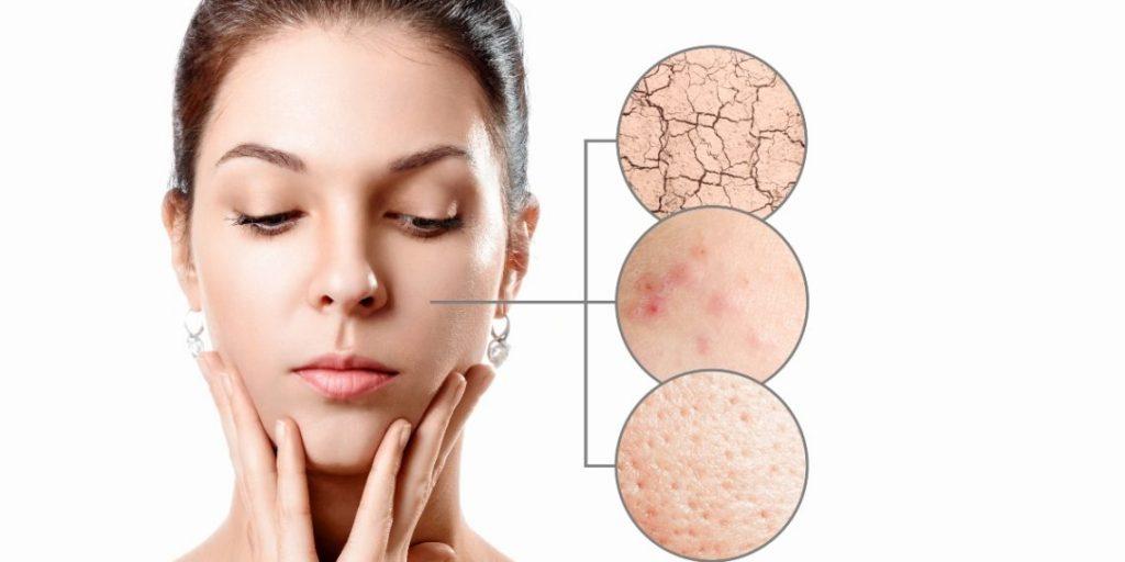 determinacion de acne